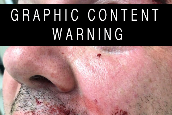 Article image for Bashed policeman left with horrific injuries but attackers granted bail