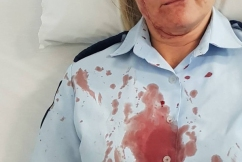 Horror injuries: Female police officer bashed while helping alleged criminal