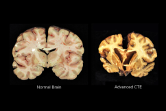 'No surprise at all': Researchers uncover deadly brain disease in former NRL players