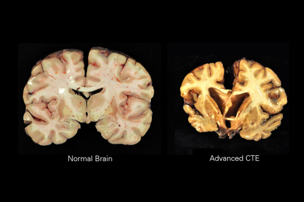 Article image for 'No surprise at all': Researchers uncover deadly brain disease in former NRL players