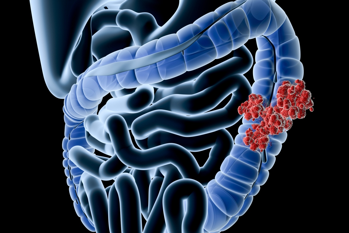 Article image for The 'astounding' bowel cancer statistic