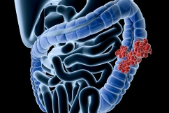 The 'astounding' bowel cancer statistic