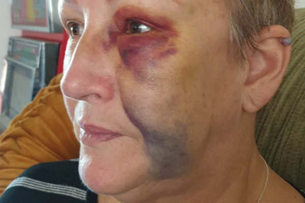Article image for 'Head-scratching' punishment for patient who attacked NSW nurse