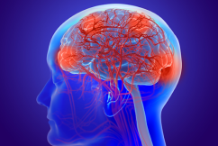 The COVID-19 symptom that's a 'red flag' for neuroscientists